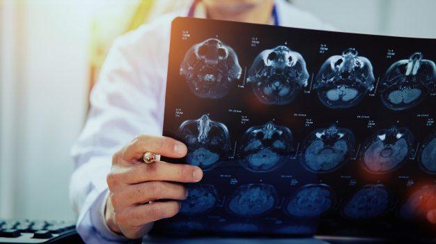 Οι ασθενείς Covid-19 με νευρολογικά συμπτώματα έχουν εξαπλάσια πιθανότητα να πεθάνουν, σύμφωνα με διεθνή μελέτη