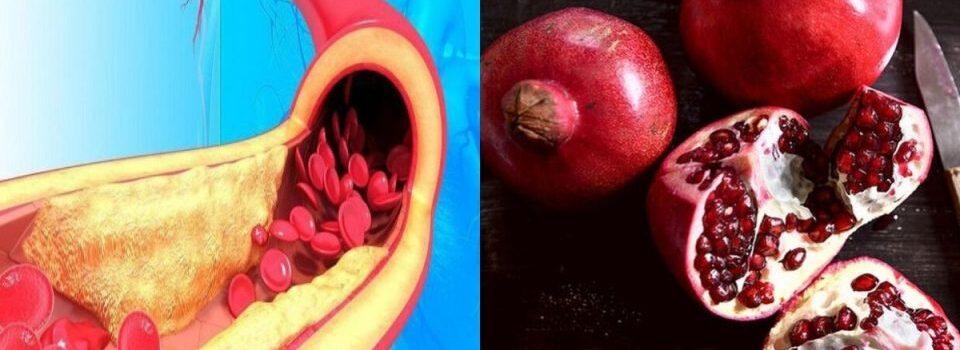 Απόφραξη αρτηριών: 10 κορυφαίες τροφές για να προλάβετε τον κίνδυνο