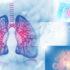 Ένα γαλλικό σύστημα τεχνητής νοημοσύνης μπορεί να κάνει διαγνώσεις του καρκίνου των πνευμόνων έως ένα χρόνο νωρίτερα